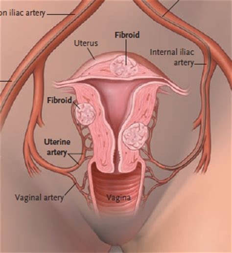 Uterus Shrinking After C Section by 17 Best Images About Fibroids On Nursing Care