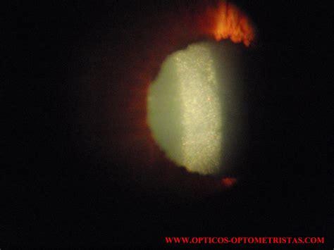 ilusiones opticas resueltas opacidad en el cristalino opticos optometristas el foro