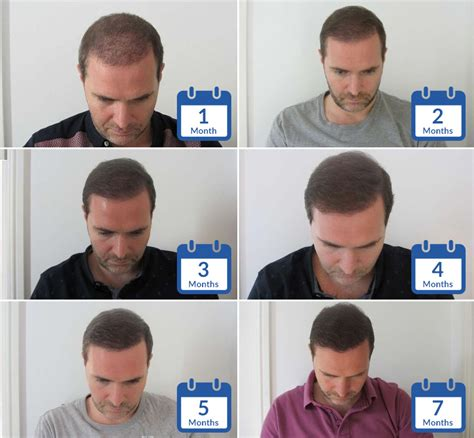 Hair Transplant Timeline Photos | hair transplant patient timelines hasson wong