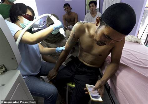 laser tattoo removal indonesia indonesia clinic gives relief to muslims with tattoo