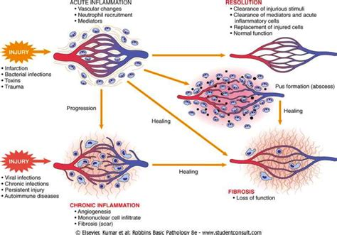 pattern analysis of inflammatory skin diseases 5 chronic inflammation patterns and systemic effects at