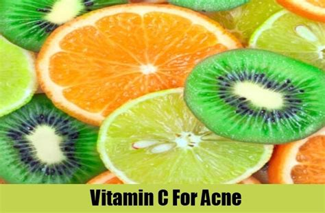 Vitamin Acne 5 best vitamins for acne how to treat acne with vitamins