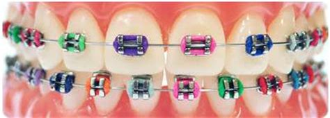 different color braces what the color of the rubber bands on your braces