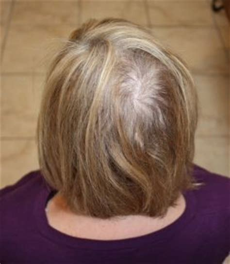 hairstyles for thin hair on head female hair loss hair designers of houston
