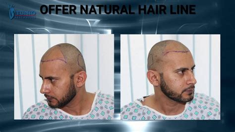 aamir khan hair transplant fue hair transplant before and after pics the best hair