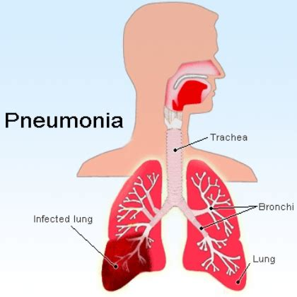 herbal remedies for pneumonia treatments cure for