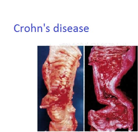 Crohn S Stool by Mbbs Medicine Humanity Inflammatory Bowel Diseases