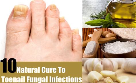 10 Natural Cures For Toenail Fungal Infections   Search