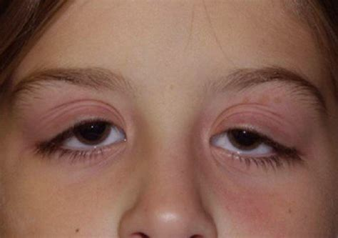 eyelid swollen swollen eyelid symptoms treatment pictures causes healdove