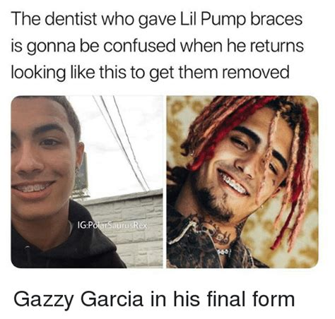 lil pump teeth the dentist who gave lil pump braces is gonna be confused