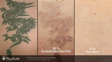 Tattoo Removal Worth It | tattoo removal dallas tx new picosure laser