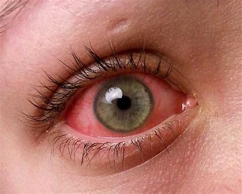 pink eye images 11 most common childhood illnesses to out for new