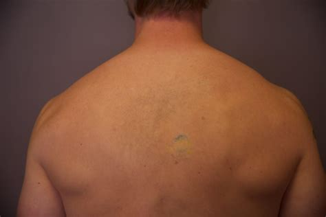 first tattoo removal session laser removal before and after the untattoo