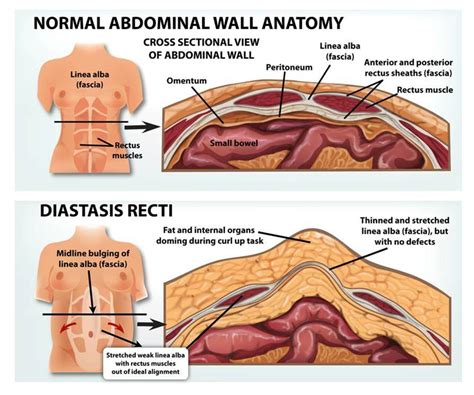 diastasis recti bellies
