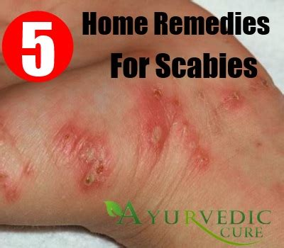 Scabies Home Treatment by 5 Scabies Home Remedies Treatments And Cures Usa Uk Herbal Supplements