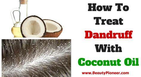 dandruff hair growth remedies