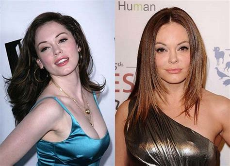 rose tarlow plastic surgery 25 best ideas about plastic surgery gone wrong on