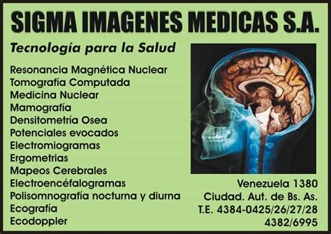 sigma imagenes medicas mexico sigma im 225 genes m 233 dicas