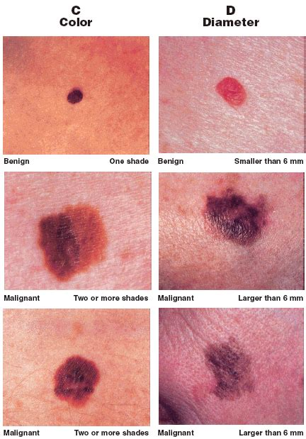 differences between malignant melanoma and a normal mole normal mole vs melanoma car interior design