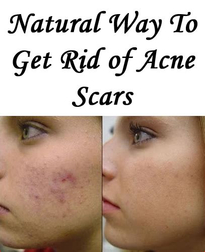 Detox To Get Rid Of Acne by How To Get Rid Of Acne Scars Fast And Naturally Remedy