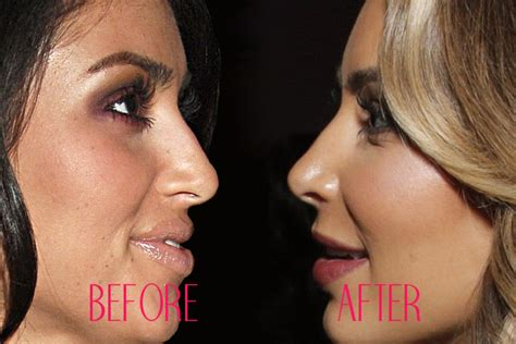 hollywood actress jobs celebrity nose jobs celebrity noses before and after