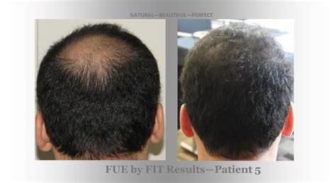 hair transplant center nyc hair transplantations nyc hair transplant center world hair transplant center hair