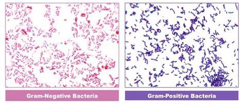 what color is gram negative gram staining bioninja