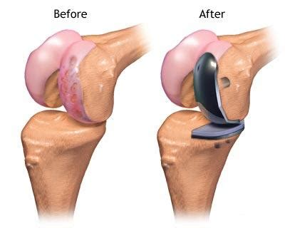 knee surgery partial knee replacement surgery information you must
