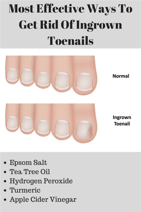 ways to get the most home for your money top 10 home remedies for ingrown toenail ingrown
