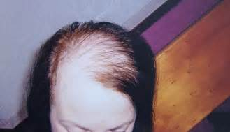 hair plantation hair style for woman could a hair transplant cure your thinning locks growing