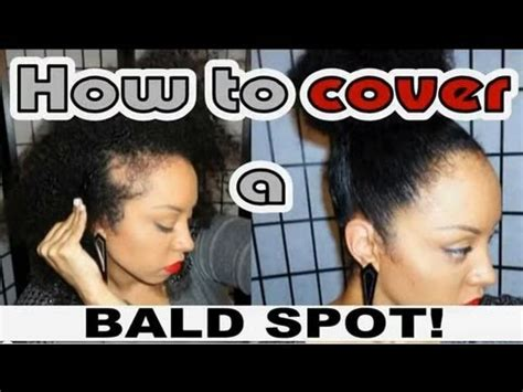 hairstyles for hiding a bald spot how to hide a bald spot my natural hair secret youtube