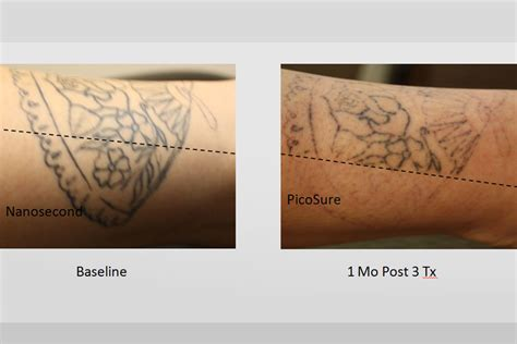 picosecond laser tattoo removal laser removal gallery picosure inklifters