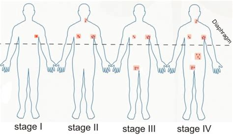 lymphoma stages staging lymphomas