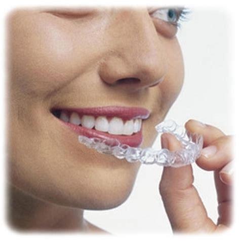 apparecchi dentali interni apparecchi dentali invisibili per ortodonzia