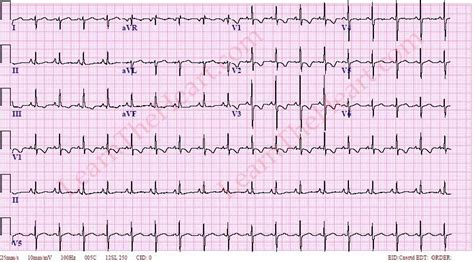 strain pattern ecg definition right ventricular hypertrophy with strain rvh ecg