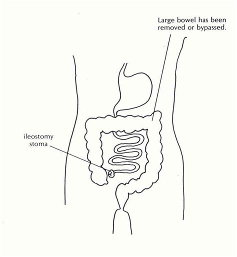 Colostomy Stool Consistency by Canada Care