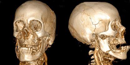 anatomia umana immagini organi interni il meglio di potere foto interno corpo umano tridimensionali