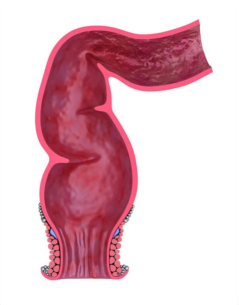Blood In Stool After Large Bowel Movement by On And Rectal Bleeding After Bowel Movements For The