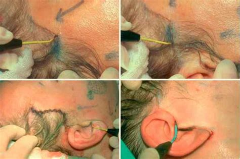 bleeding c section incision rhytidoplasty step by step aesthetic surgery