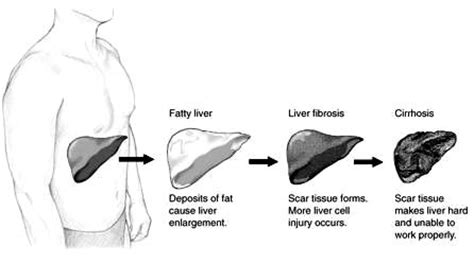 Liver Detoxes That Wont Take Out Regular Medication by Fatty Liver Diet Supplements For Your Liver Detox