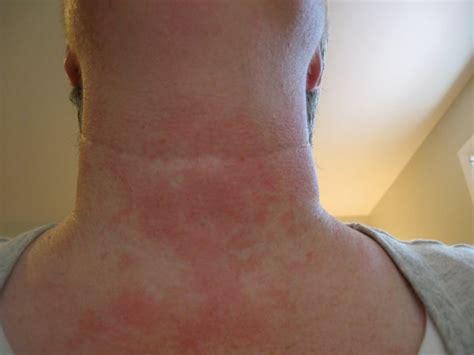rash on neck stomach bug and gestational diabetes simple carbs bodybuilding neck sweat rash