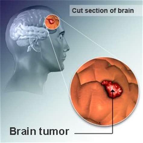 brain tumor diagram what causes brain tumours the cause of most benign brain