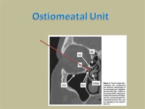 in unit ostiomeatal unit