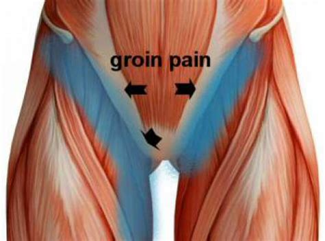 sore hips while sleeping on side groin symptoms treatments