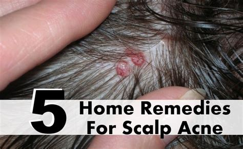 hair loss remedy hair loss treatments black