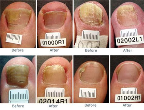 what does it get light out in pa laser toenails fungus removal beaver valley clinic