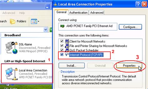 configure xp for local network configure windows xp ip settings