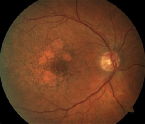 pattern dystrophy differential diagnosis differential diagnosis of retinal disease