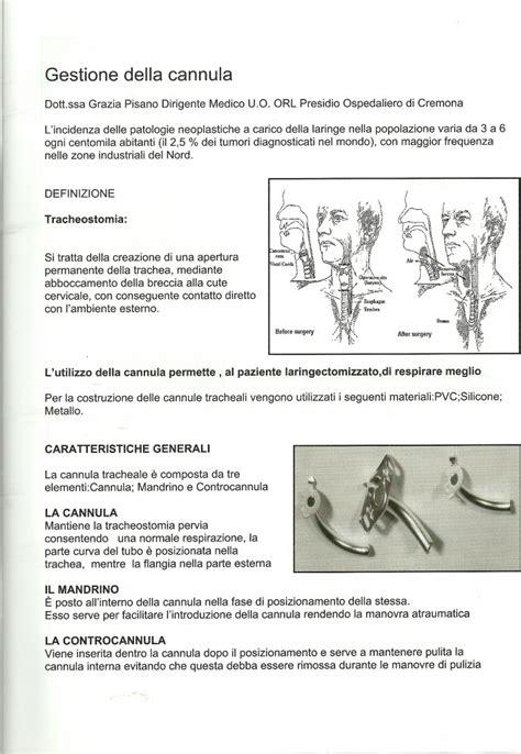 tracheotomia alimentazione controcannula lanzo