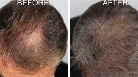 hair growth before and after hair growth remedy results before and after youtube